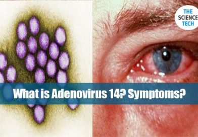 What is Adenovirus 14? Symptoms?