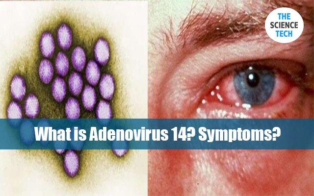 What is Adenovirus 14? Symptoms?